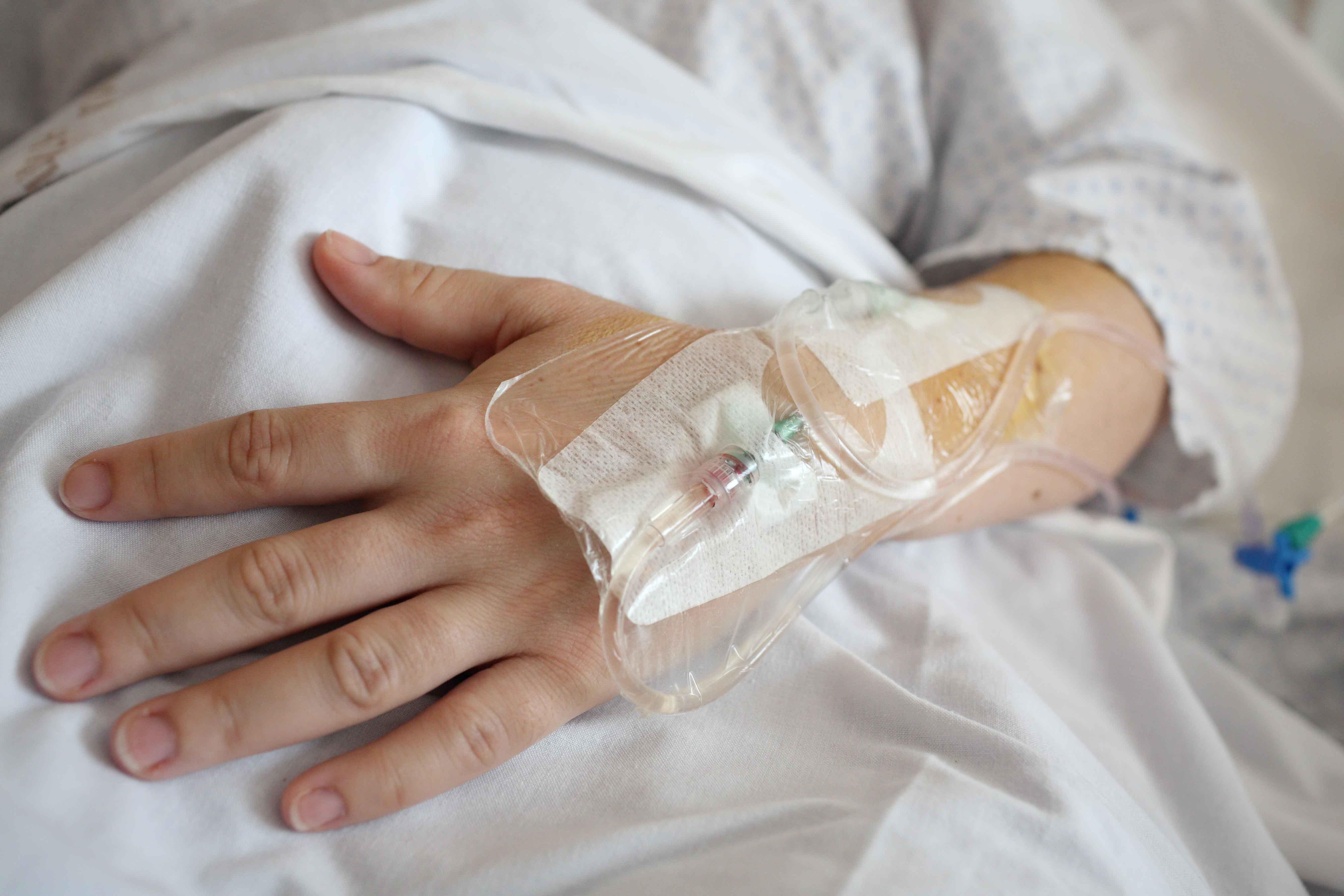 Mano de paciente oncológico