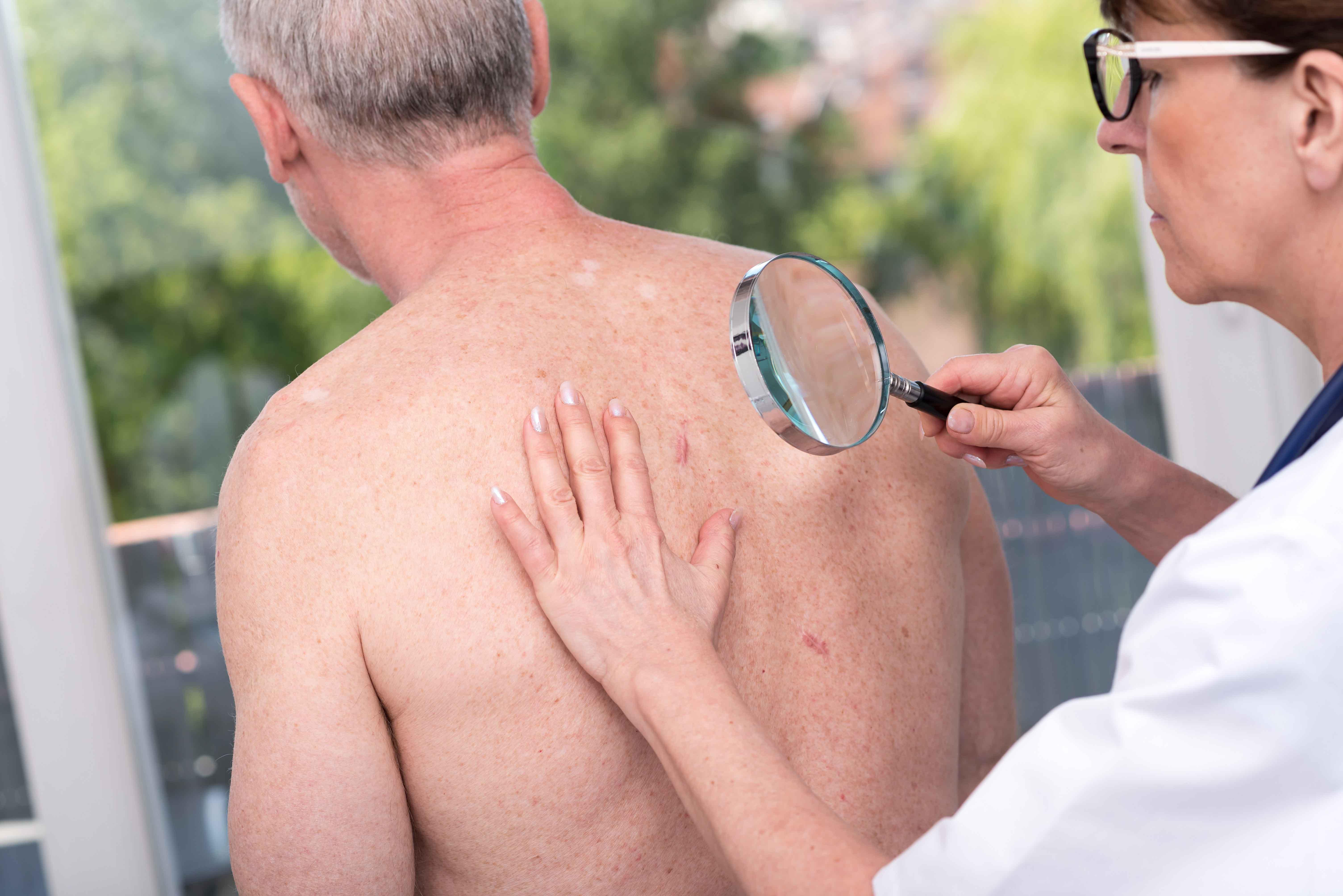 Médico examinando lunares en la espalda de paciente