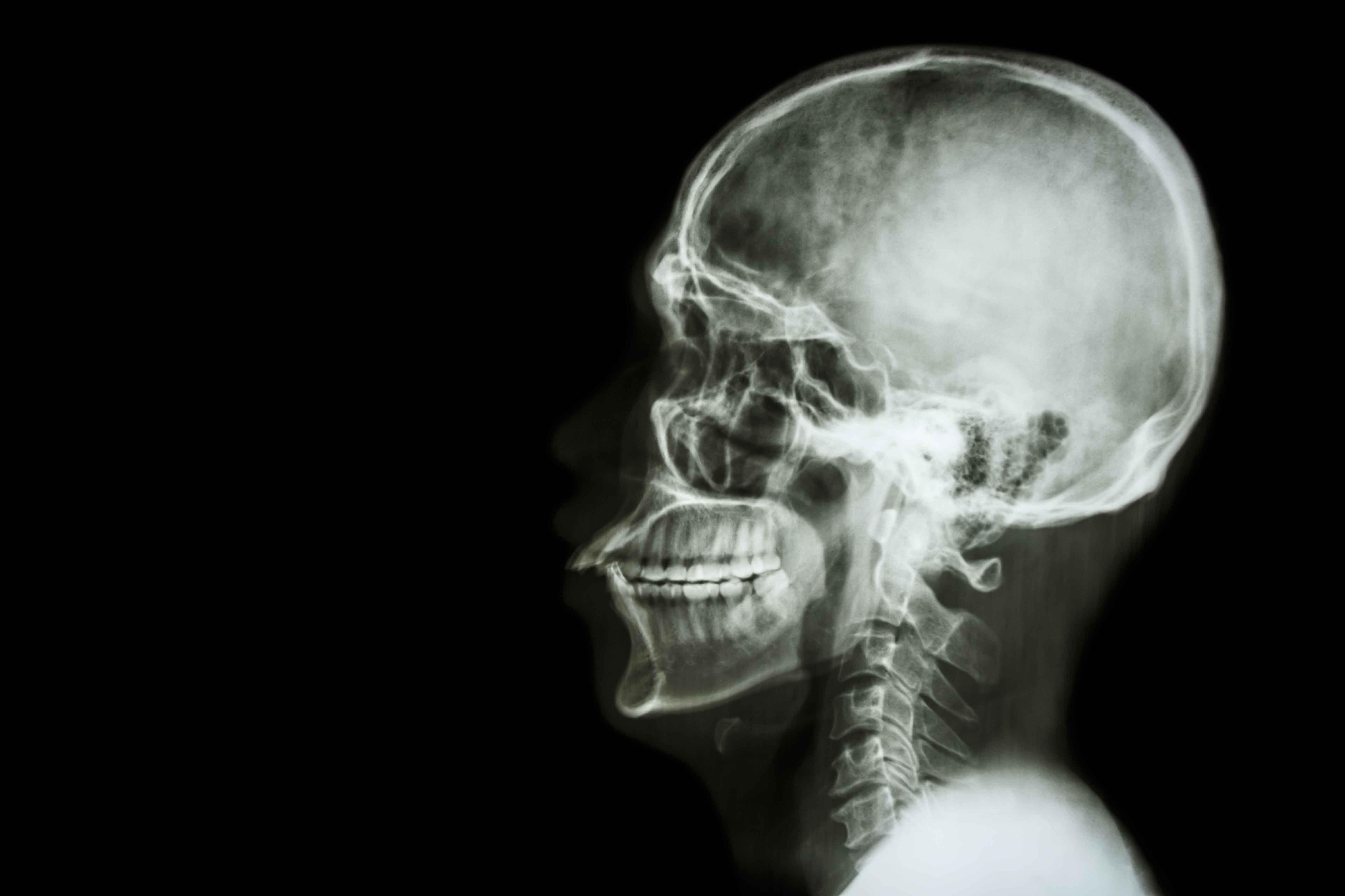Técnico Profesional en Radiología Dental (90 horas) – Fundación Maude